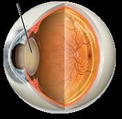 Cataract Symptoms in Boca Raton, FL