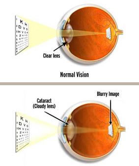 Cataract Treatment Boca Ration, FL | Aker Kasten Eye Center