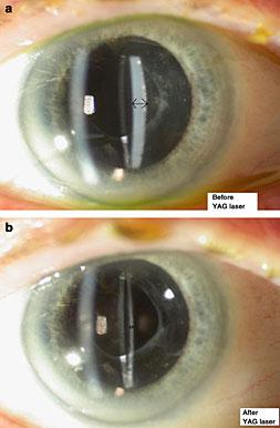 Yag Laser Capsulotomy Post Cataract Surgery Boca Raton Fl
