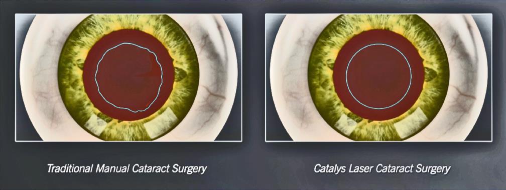 laser cataract surgery in boca raton