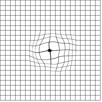 amsler grid with macular degeneration