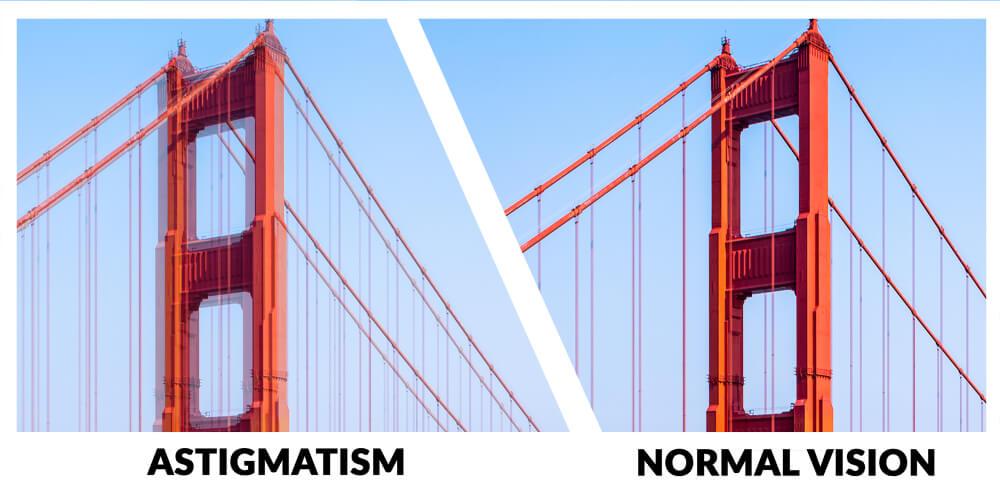 Golden gate bridge viewed with astigmatism