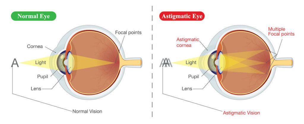 Normal vs Astigmatic eye diagram